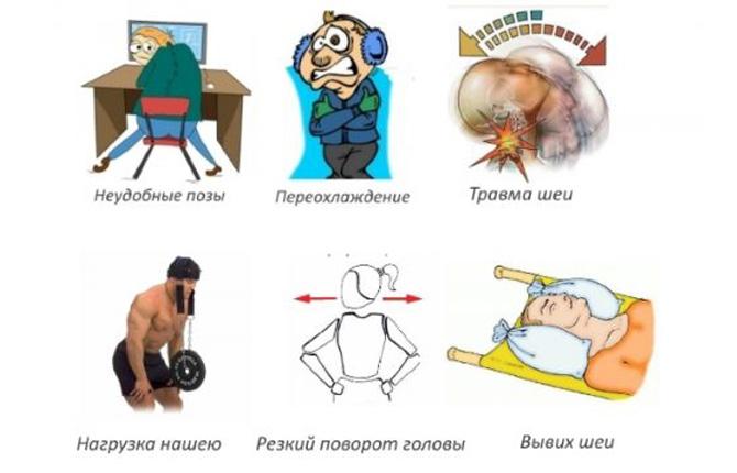 Причины растяжения мышц шеи