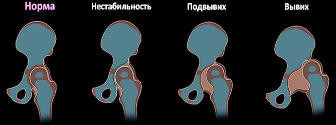 Стадии развития дисплазии
