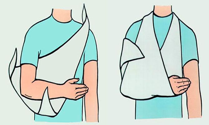 Фиксирующая повязка для руки