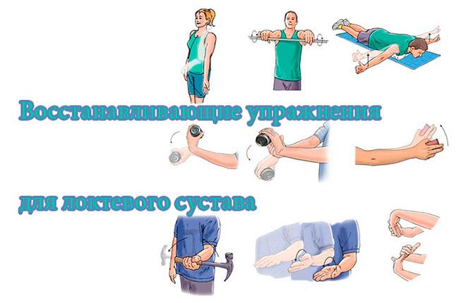 Упражнения для локтевого сустава