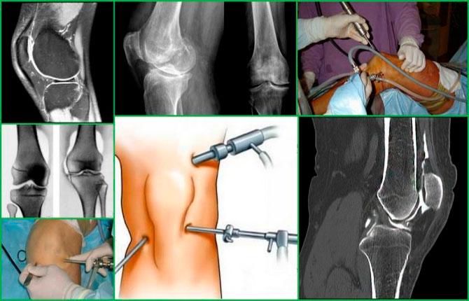 Хирургическое лечение менископатии коленного сустава