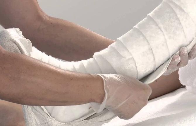 Гипс на ногу