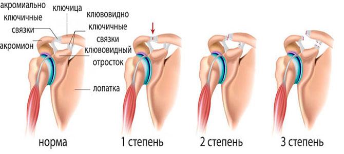 Степени растяжения связок плеча