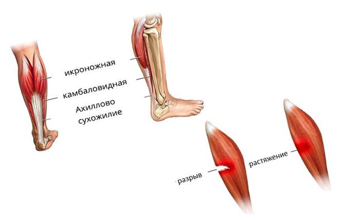 Мышцы ноги
