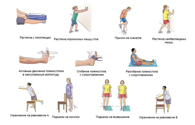Упражнения при растяжении мышц на ноге