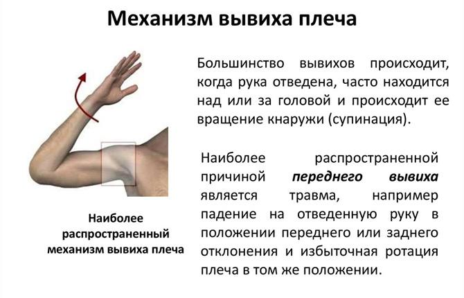 Механизм вывиха плеча