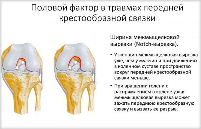 Половой фактор в травмах передней крестообразной связки