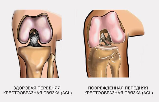 Здоровая и поврежденная передняя крестообразная связка