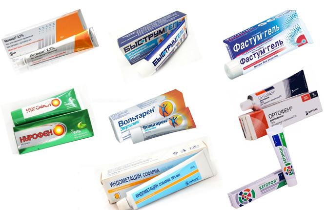Препараты местного применения при разрыве связок