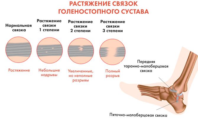 Степени растяжения связок голеностопа