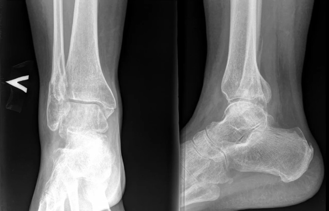 Перелом лодыжки на рентгене с отеком