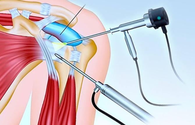 Артроскопия при субакромиальном бурсите