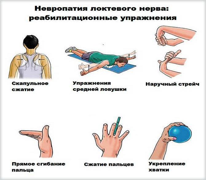 Упражнения при невропатии локтевого нерва