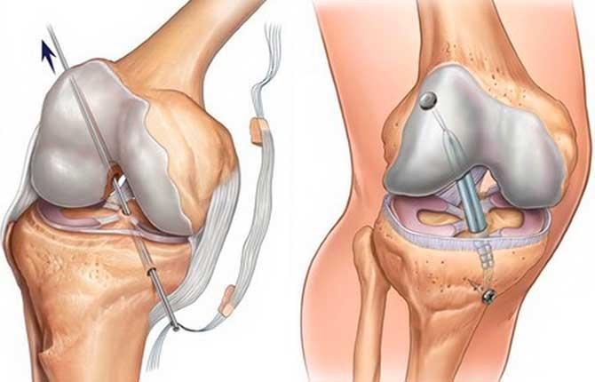 Хирургическое восстановление связок
