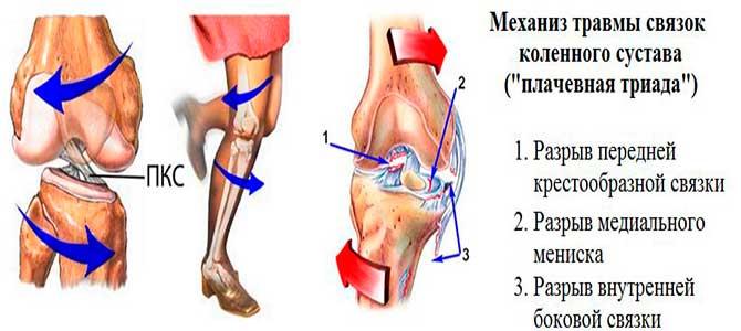 Механизм травмы связок колена
