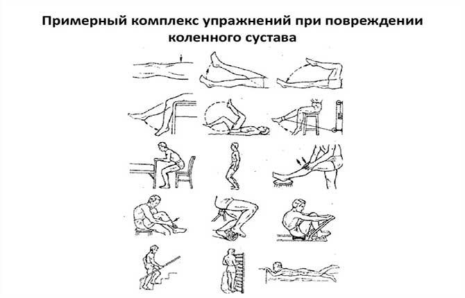 Комплекс упражнений при повреждении коленного сустава