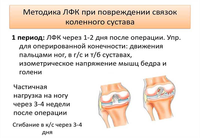 Методика ЛФК при повреждении связок колена