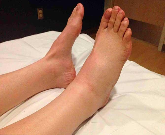 Острый асептический тендовагинит голеностопного сустава