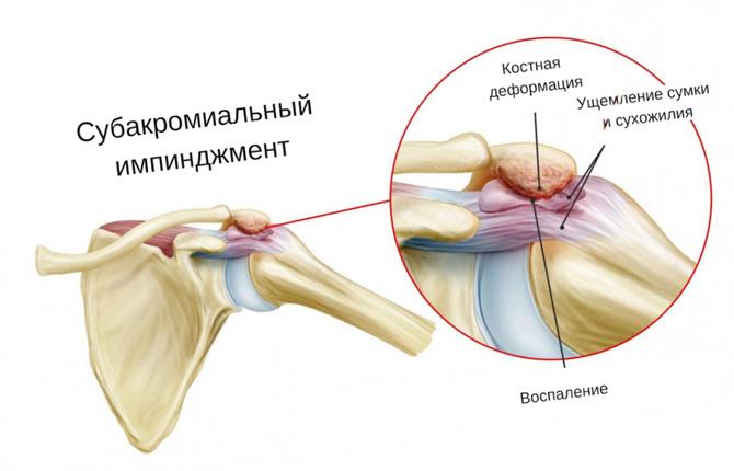 Что такое импиджмент плечевого сустава