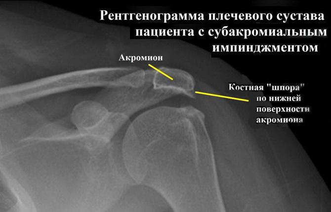 Рентген плечевого сустава