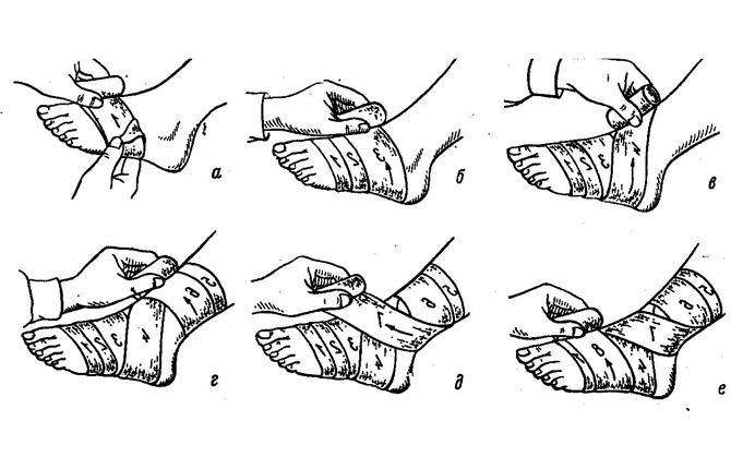Наложение тугой повязки при вывихе голеностопа