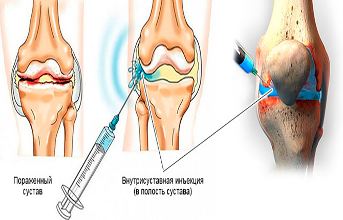 Внутрисуставная инъекция в колено