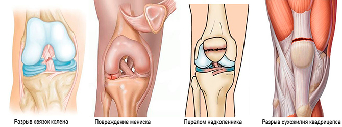 Возможные травмы коленного сустава