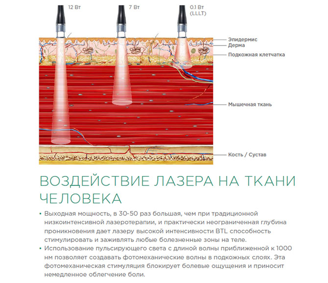 Воздействие лазера на ткани человека