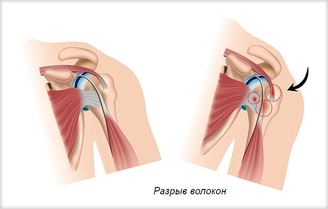Разрыв волокон в связках плеча