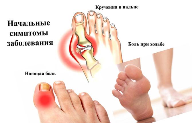 Симптомы артроза сустава большого пальца