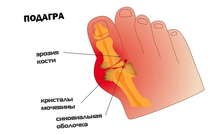 Подагра сустава большого пальца ноги