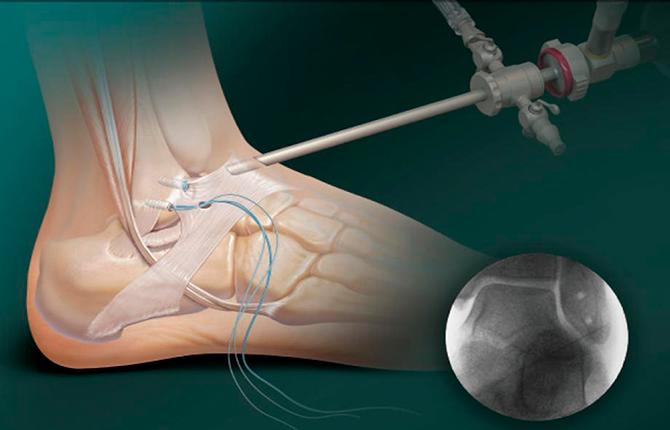 Хирургическое вмешательство при пяточной шпоре