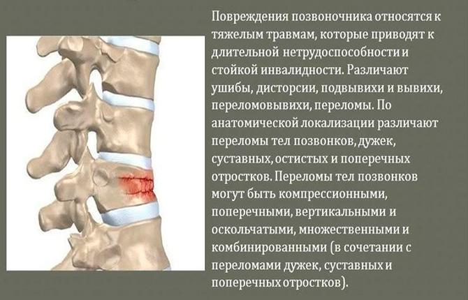 Механические повреждение позвоночника