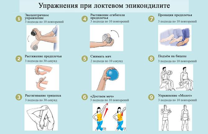 Упражнения при локтевом эпикондилите