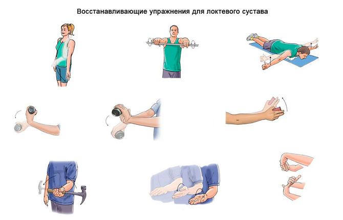 Тренировок для профилактики болей в локтях