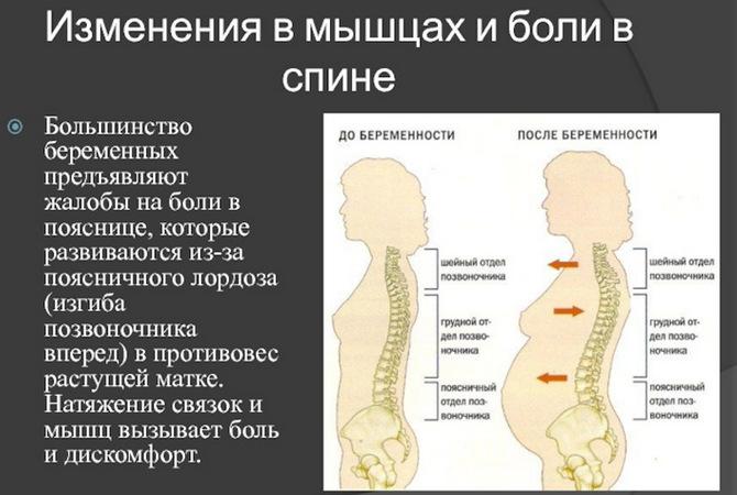 Позвоночник во время беременности