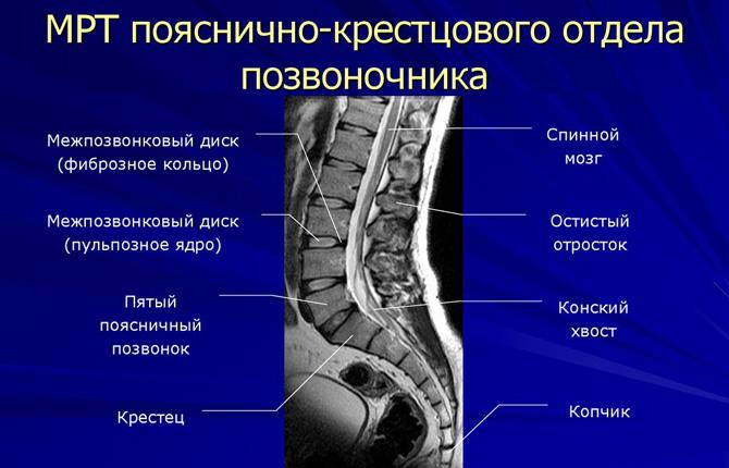 Снимок МРТ позвоночника