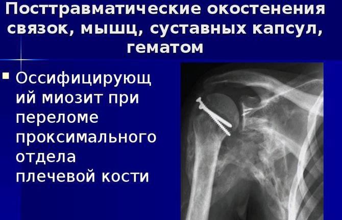 Посттравматические окостенения связок, мышц