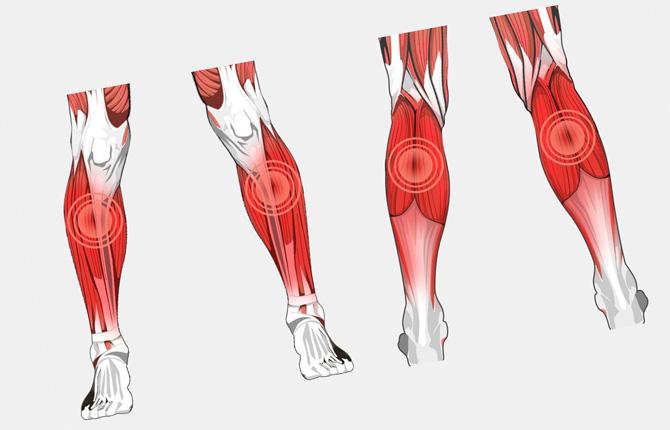Миозит икроножных мышц