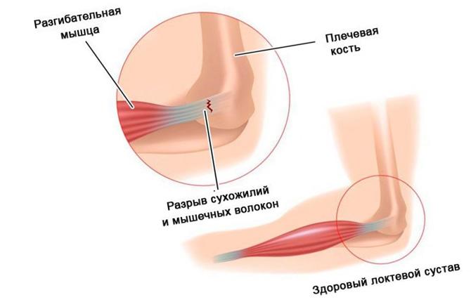 Разрыв сухожилий локтевого сустава