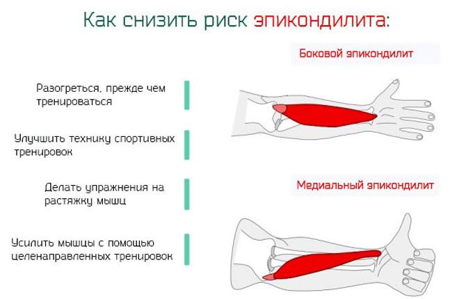 Как снизить риск эпикондилита