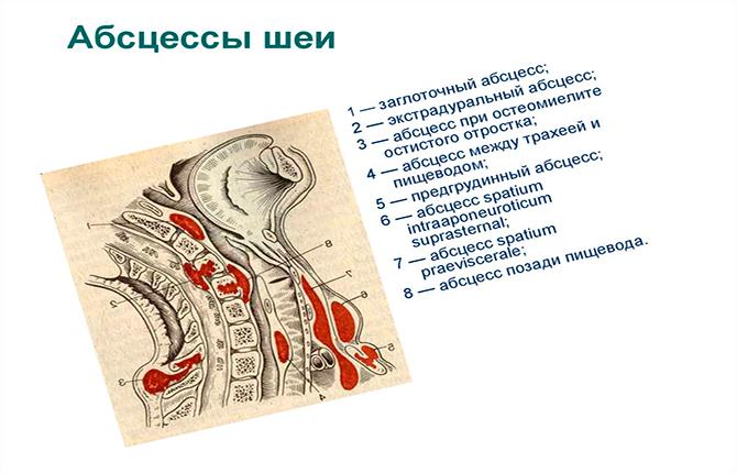 Абсцессы шеи