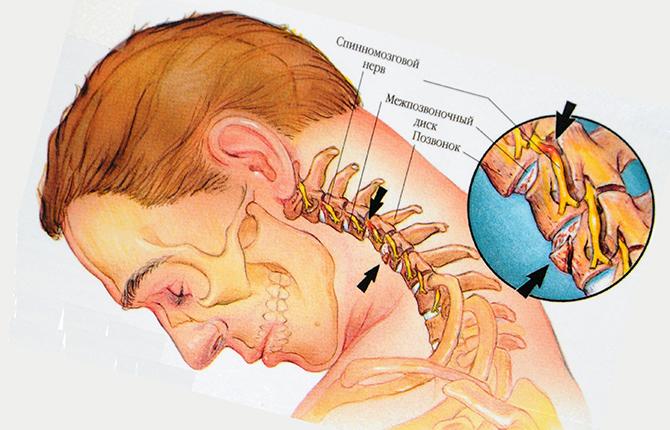 Цервикалгия и нервная система