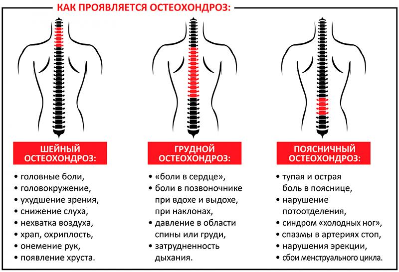 Проявление остеохондроза позвоночника