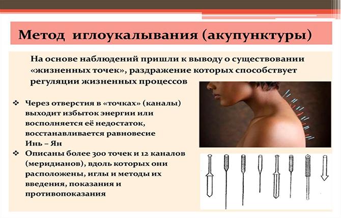 Иглоукалывание при болях в спине