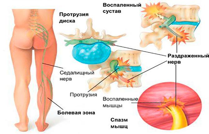 Воспаления пояснично-крестцового отдела