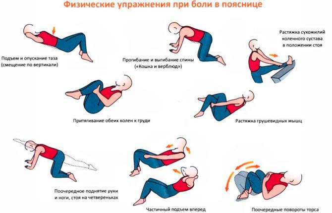 ЛФК при боли в спине