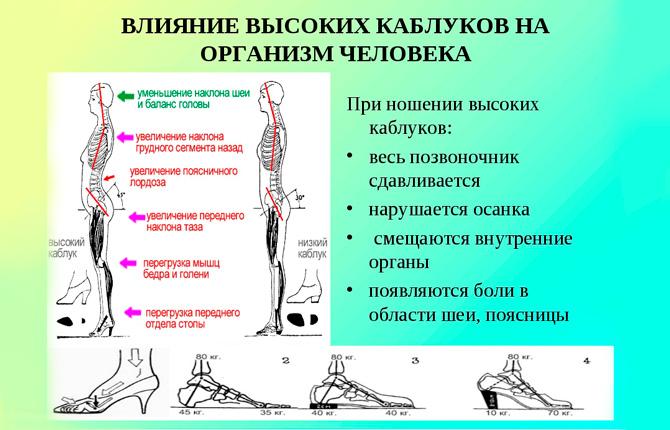 Влияние высоких каблуков на организм